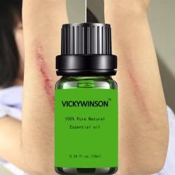 Élimination des cicatrices et traitement de l'acné - Huile de massage à la lavande 10 ml