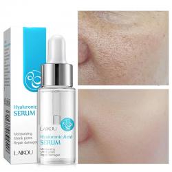 Hyaluronsäure-Gesichtsserum - feuchtigkeitsspendend - Poren verkleinern - Akne-Flecken entfernen - pflegend